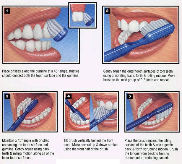 Is there a wrong way to take care of your teeth?